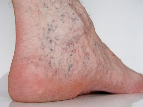 spider vein causes